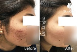 Acne Treatment Before After