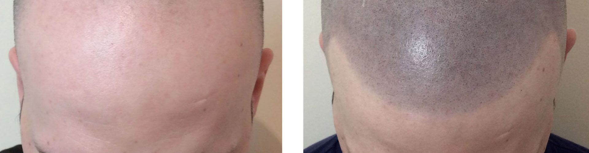 Scalp Micropigmentation clinic SkinQure