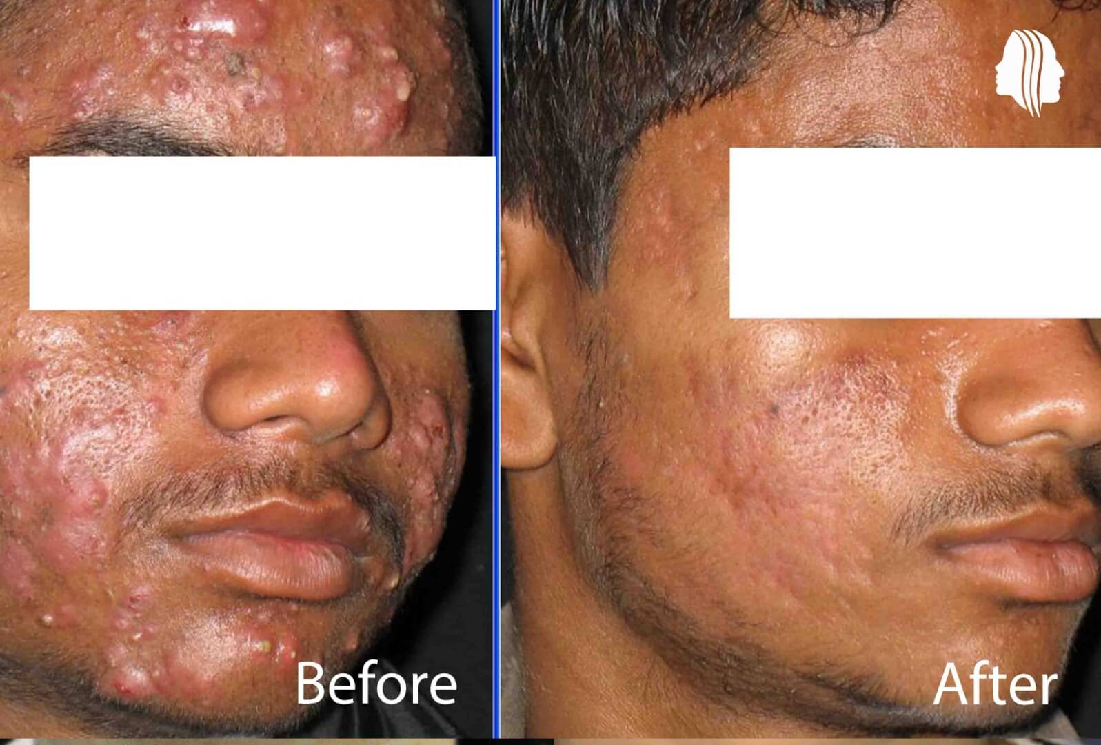 Acne treatment in Delhicneprepost in skin allergy
