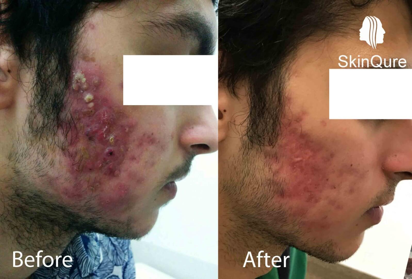 Asaa PrePost in skin allergy