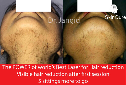 Laser Hair removal - visible result after 1 s