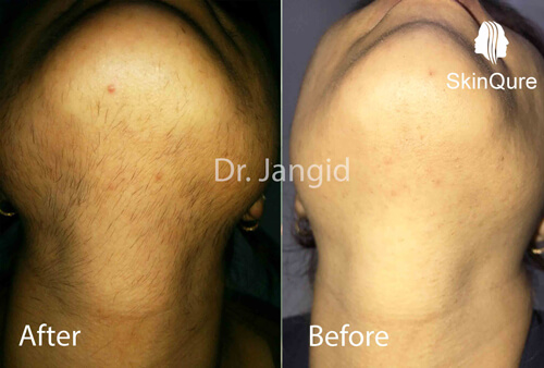 Fine Hair reduction after 6 sessions (result