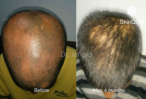 Alopecia areata after 5months treatment