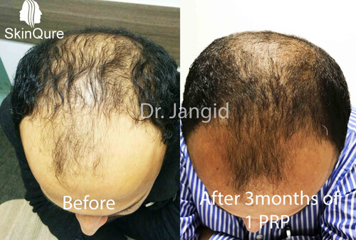 Hair Fall treatment after 1 PRP, Result after