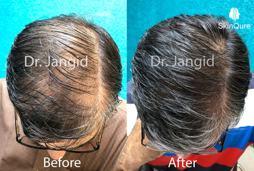 Hair Growth after 6 months treatment