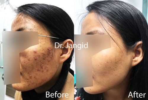 Clearance of acne in 3 months