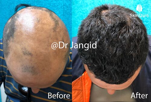 Alopecia areata with PRP and medicine