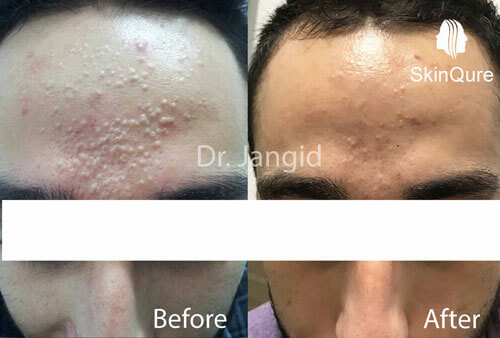Comedonal acne or White heads treatment