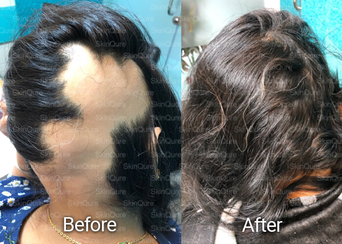 hair Treatment before and after