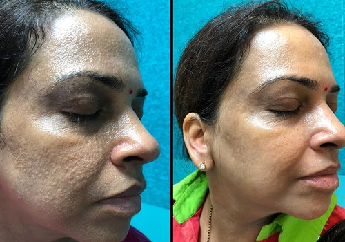 Anti-ageing Treatments before and after