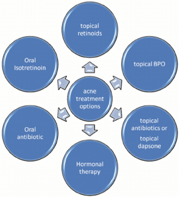 Treatment options for Acne